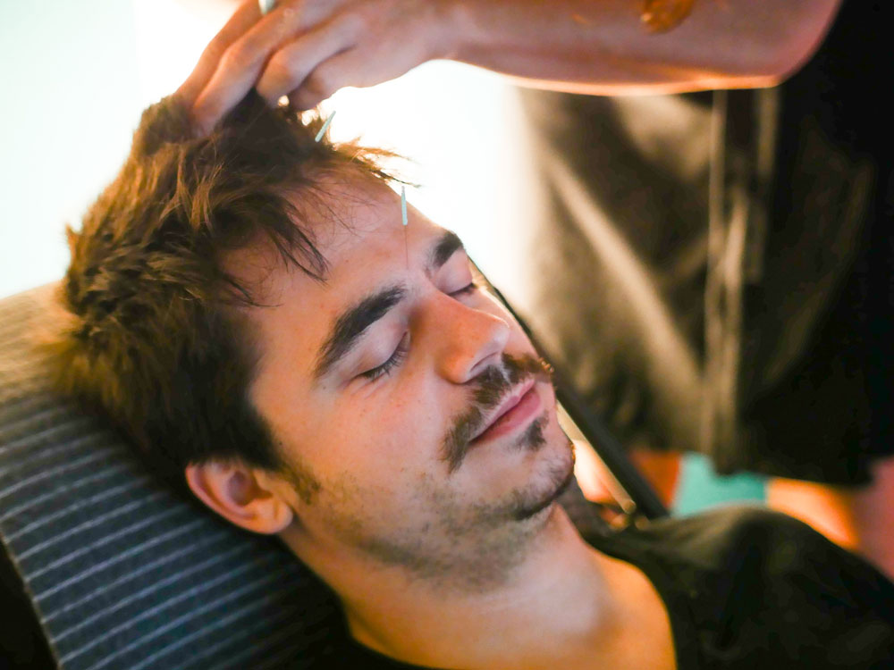 comfortable-acupuncture-patient-male-evenstar