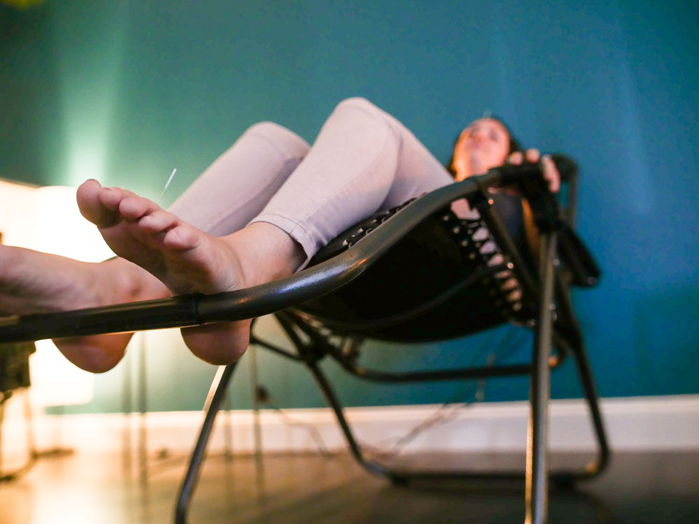 relaxing-community-acupuncture-treatment